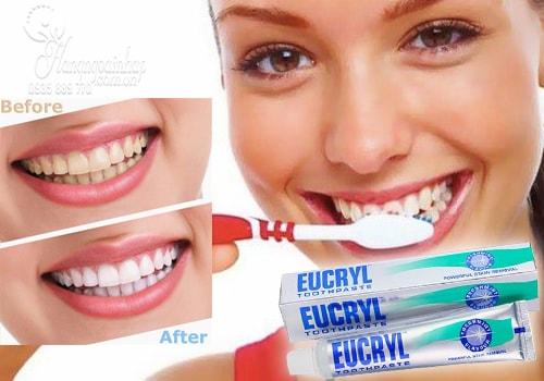 Công dụng kem tẩy trắng răng eucryl