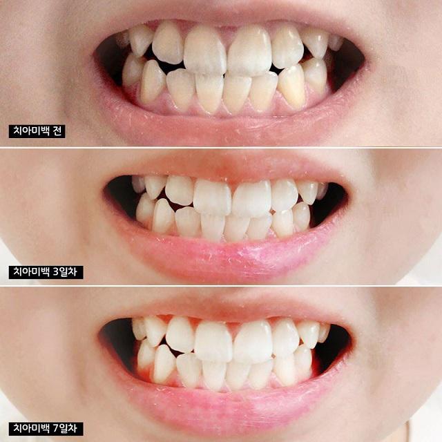 Kem đánh răng Median 86, kem đánh răng Median 93 Hàn Quốc 6