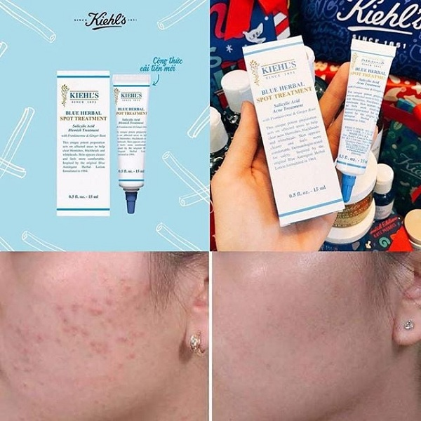 Gel trị mụn Kiehl's Blue Herbal Spot Treatment review