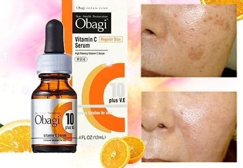 Cách sử dụng serum Obagi Vitamin C10 hiệu quả-3