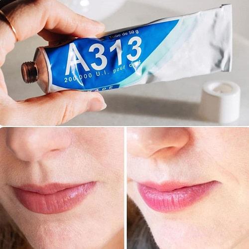 Kem dưỡng A313 chính hãng giá bao nhiêu-2