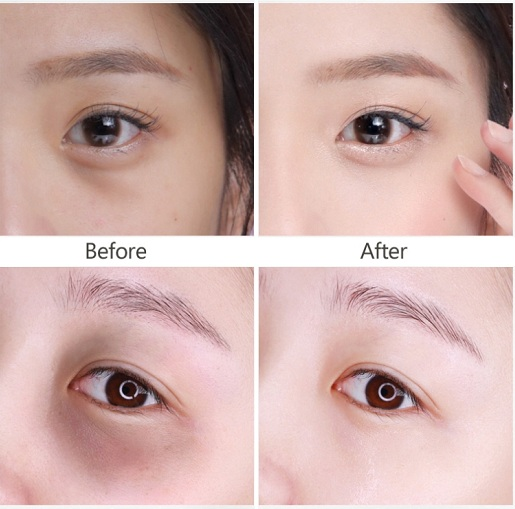 Meishoku Whitening Eye Cream - Kem mắt cao cấp của Nhật 7